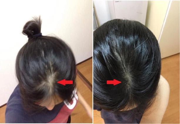 Cách làm mọc tóc nhanh