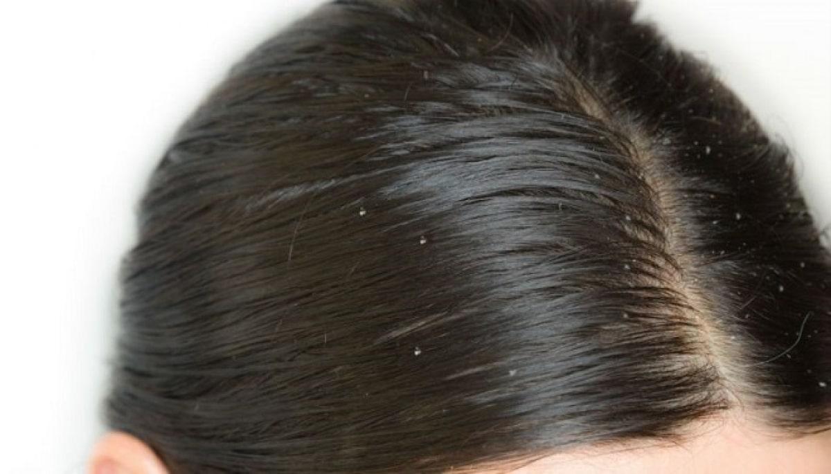 Đi ngủ với tóc ướt làm tóc dễ bết dính dầu