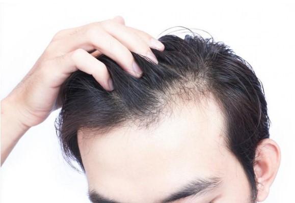 Hướng dẫn mọc tóc nhanh cho nam