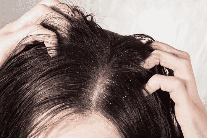 Gội đầu thường xuyên dễ gây ra gàu